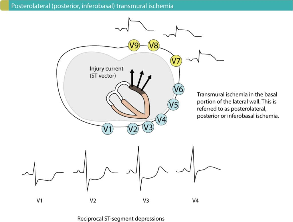 Figure 1. Posterolateral (posterior, inferobasal) transmural ischemia causes reciprocal ST-segment depressions in V1–V3 (ocassionally V4). Leads V7–V9 must be placed to reveal the ST-segment elevations.
