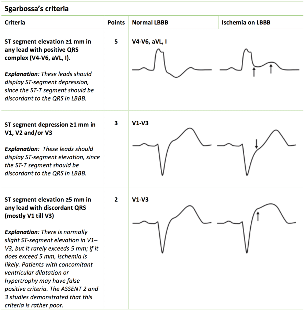 Table 1. Sgarbossa's criteria ECG criteria for detecting myocardial ischemia / infarction in patients with left bundle branch block (LBBB).