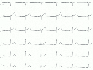 Figure 3. Chest leads of patient with acute pericarditis. Note the ST segment elevations, concave ST segments.