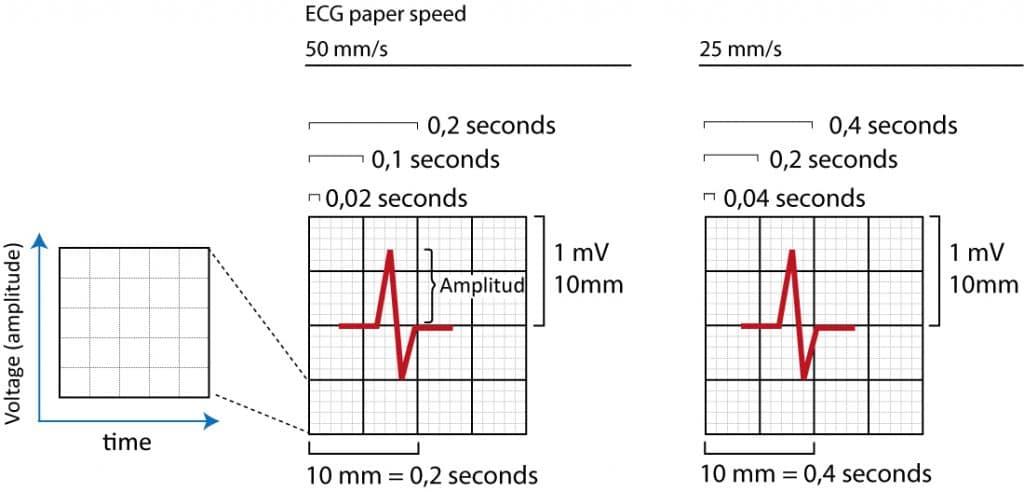 Figure 15. The ECG grid.