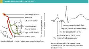 ECG non-specific nonspecific intraventricular conduction delay