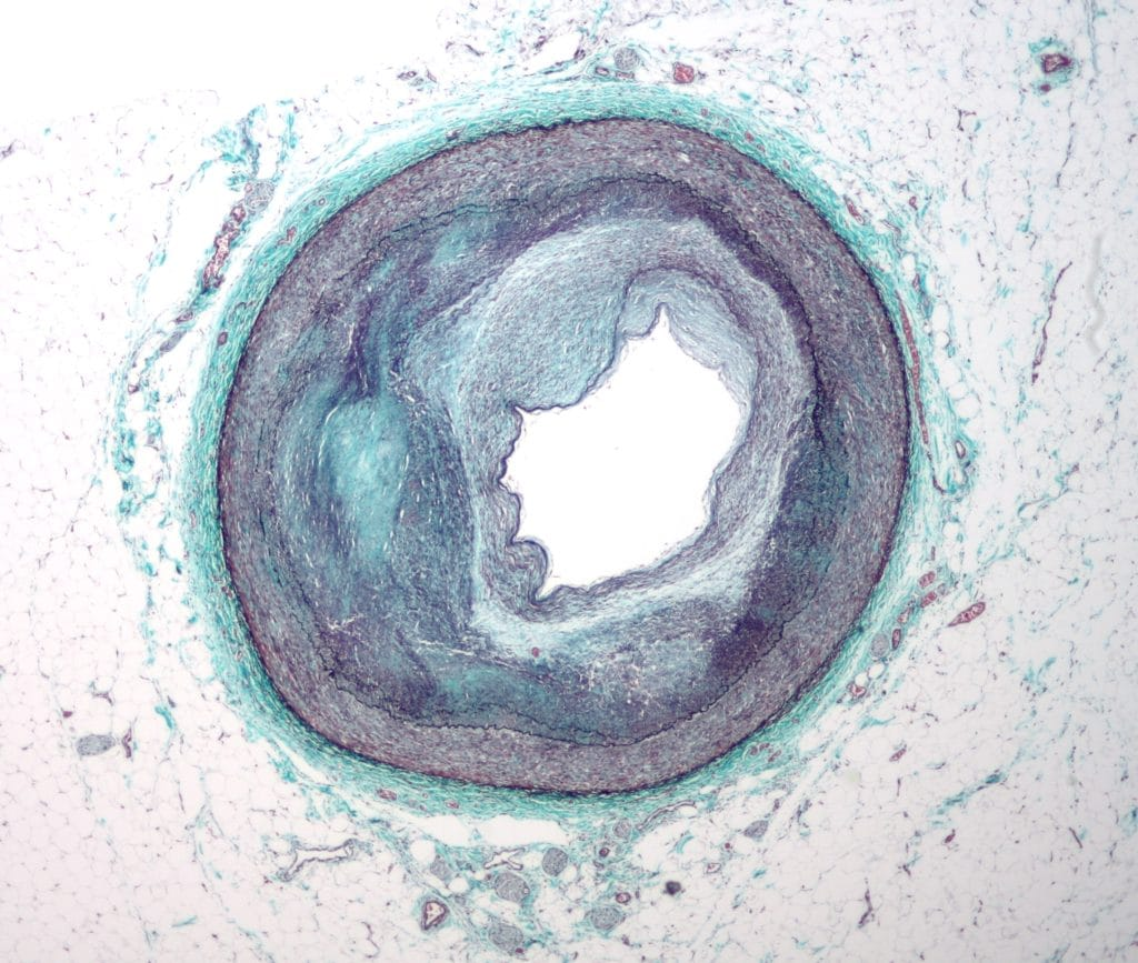 Coronary plaque with reudction of the lumen diameter. This plaque causes myocardial ischemia.