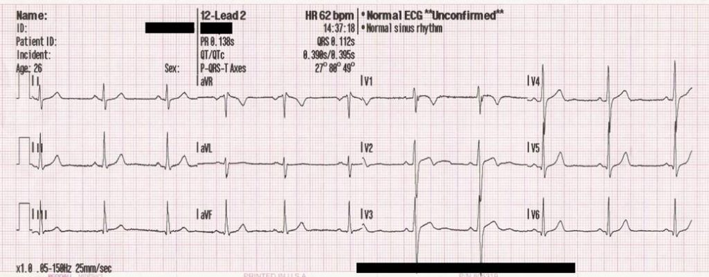 Figure 1. Traditional presentation of the leads in the 12-lead ECG.