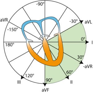 Figure 2. The coordinate system presenting the limb leads in the frontal plane.