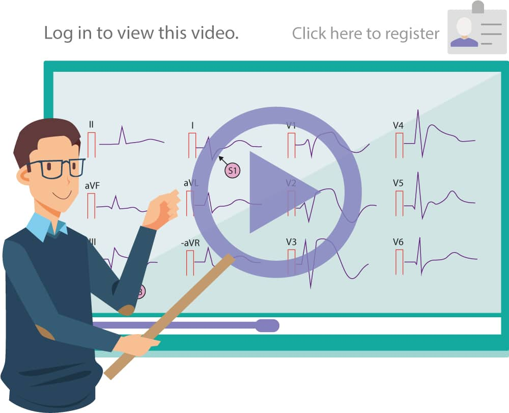 Video lecture ECG interpretation and cardiac electrophysiology