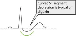 Figure 1. ST segment depression due to digoxin treatment.