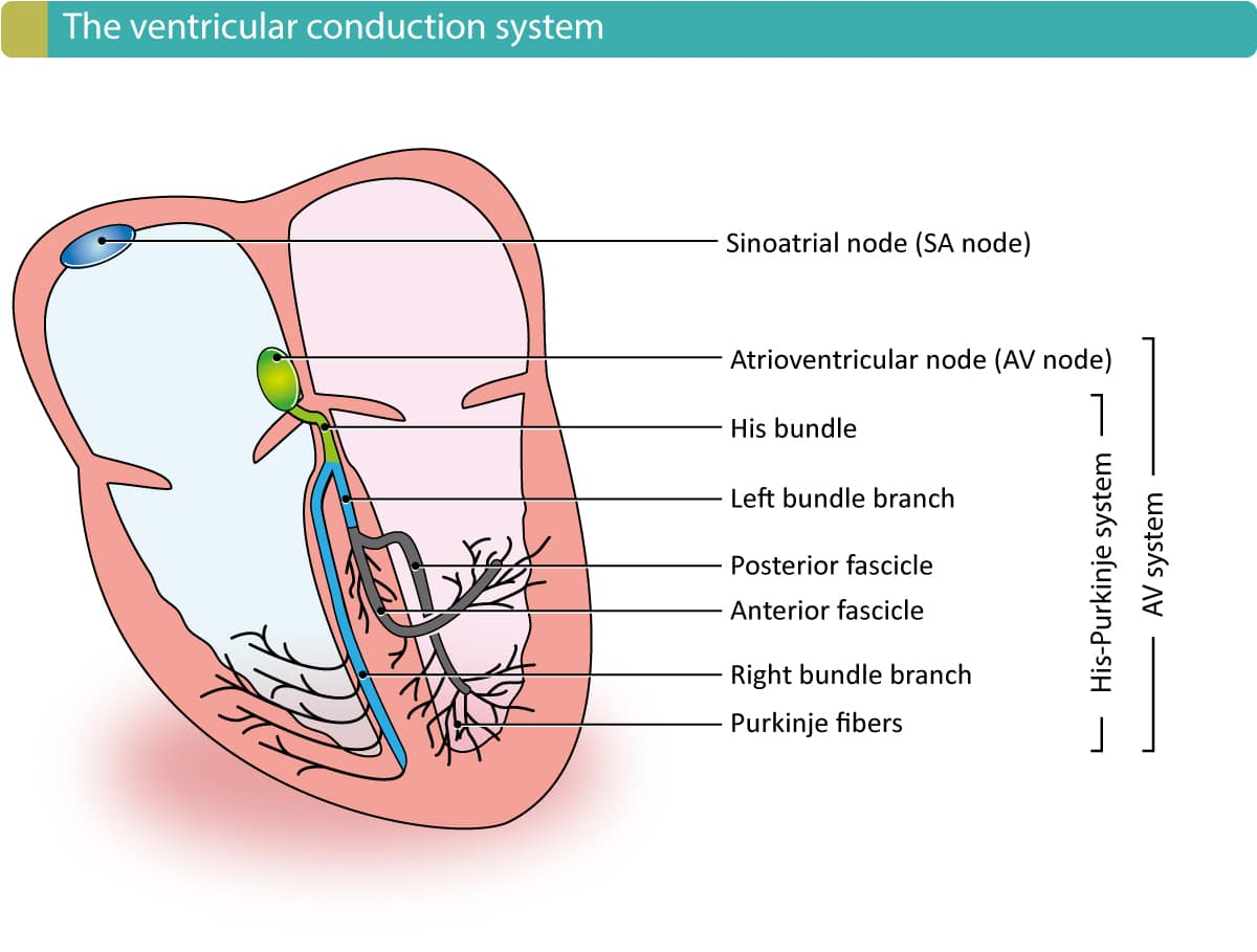 Figure 1. The electrical conduction system of the heart, with emphasis on the ventricles. The sinoatrial (SA) node and atrioventricular (AV) node are located in the atria (they are not part of the ventricular conduction system). The AV node continues in the bundle of His, which branches into the right and left bundle branch. The left bundle branch is then divided into an anterior and posterior fascicle. The right bundle branch and the fascicles then branch further into the fine Purkinje network which sprouts out to the entire myocardium. Note that the ventricular conduction system is the His-Purkinje system.