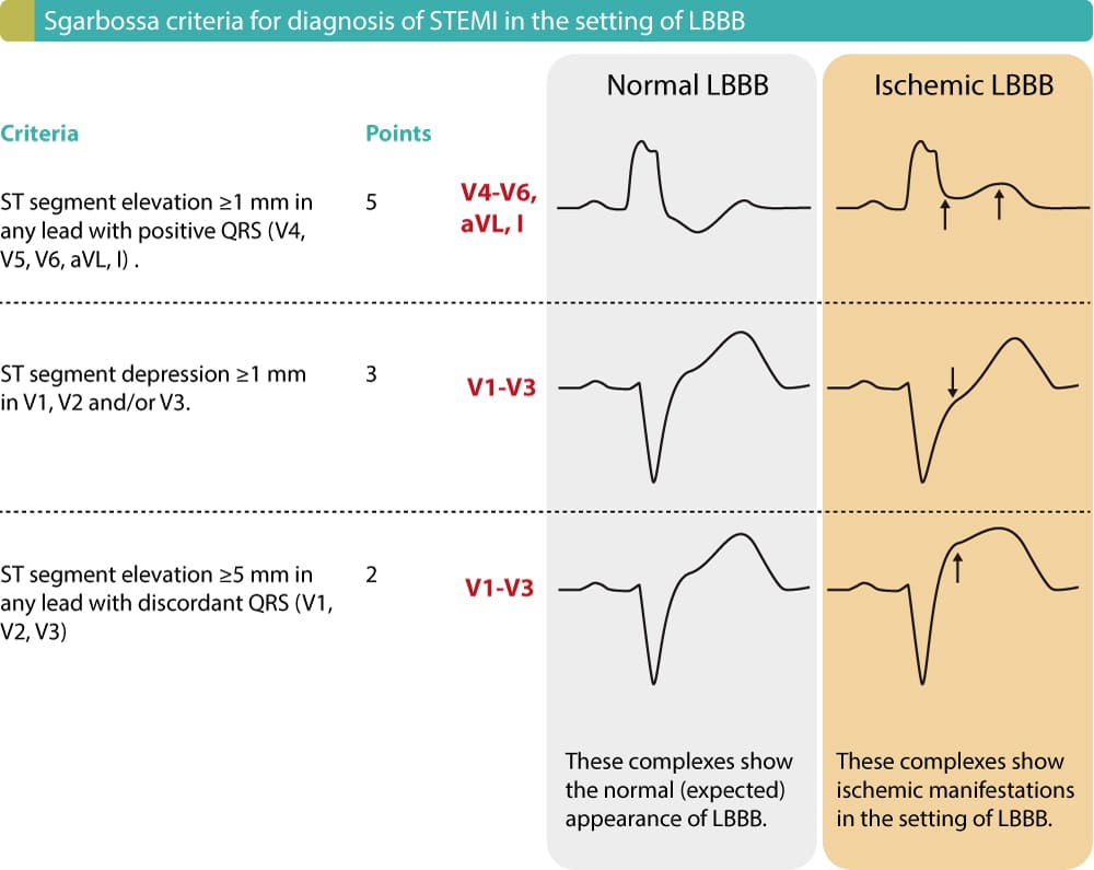 Figure 1. ECG criteria (Sgarbossa criteria) for acute STEMI in the setting of LBBB. Each criteria gives 2 to 5 points. Studies show that a cut-off of ≥3 points yields a sensitivity of 20–36% and specificity of 90–98% for acute STEMI in the setting of LBBB.