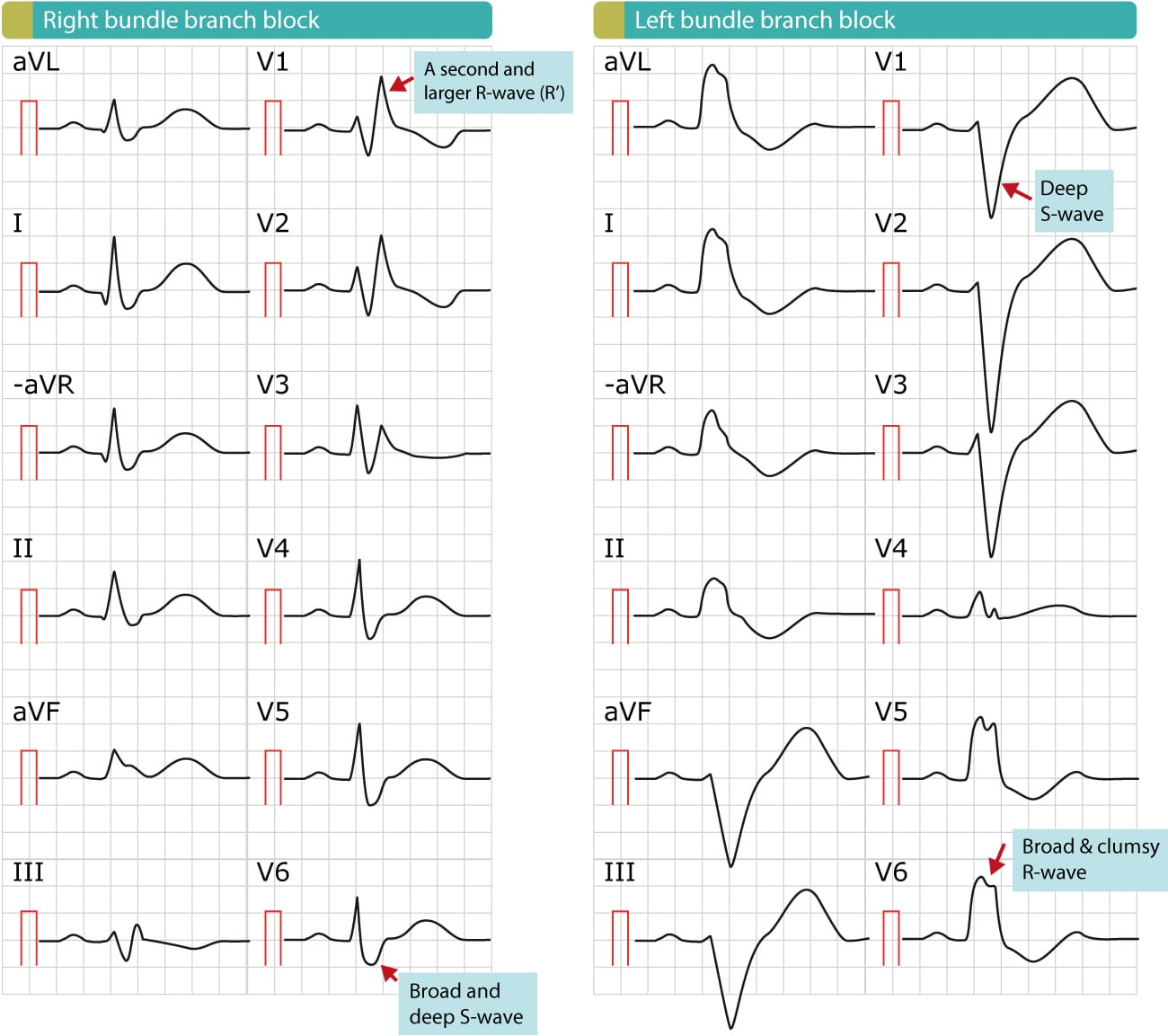Figure 2. Right bundle branch block (RBBB) and left bundle branch block (LBBB). Note that the paper speed is 50 mm/s (1 large box equals 100 ms). The hallmark of both RBBB and LBBB is the QRS duration which is by definitions 120 ms or longer. The distinction between RBBB and LBBB is simple, as illustrated in this figure.