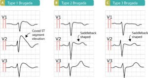 Figure 10. ECGs presenting Brugada syndrome type 1, type 2 and type 3, respectively.