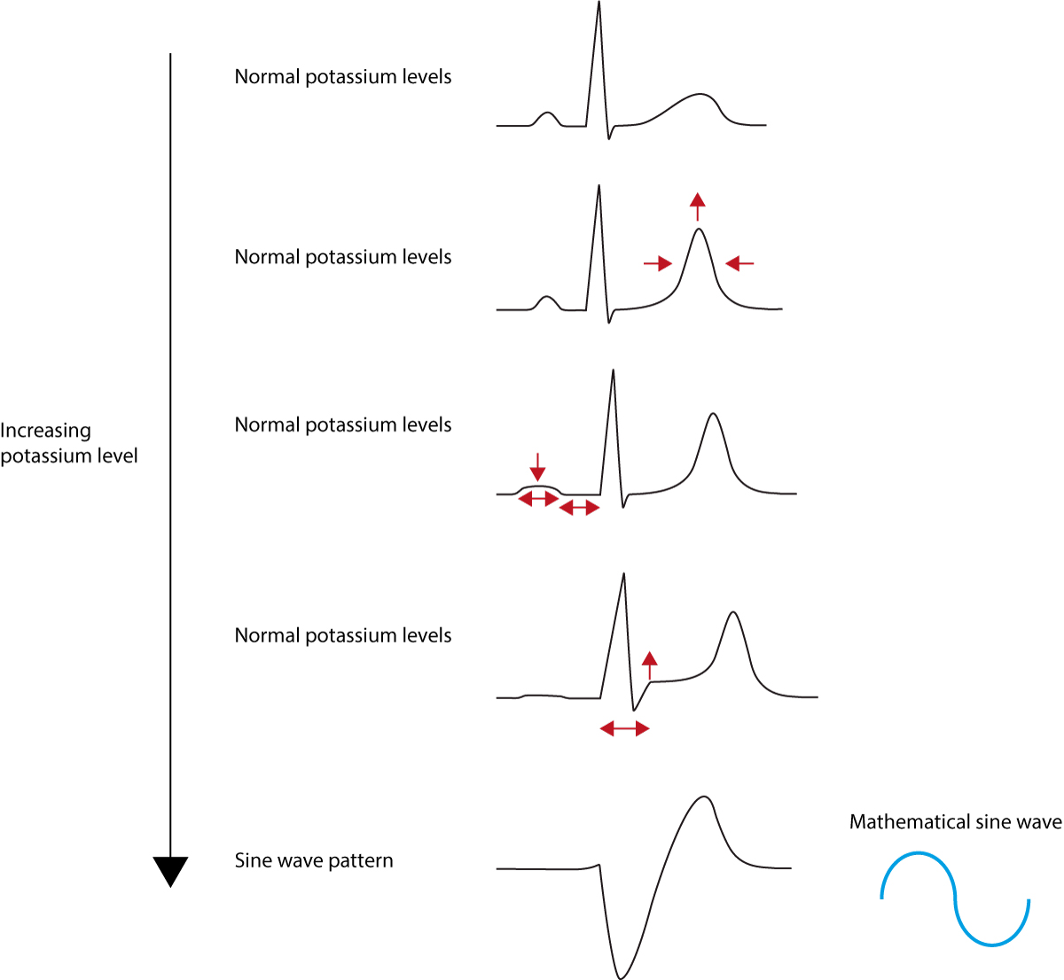 Figure 1. ECG changes seen in hyperkalaemia.