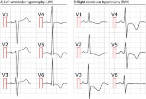 Figure 2. Two ECGs showing left and right ventricular hypertrophy.