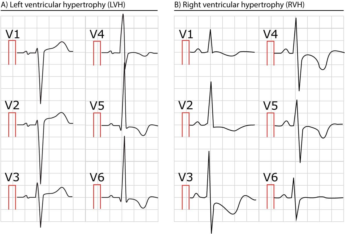 the ecg in left ventricular hypertrophy  lvh  criteria ekg vector circle ekg vector leads