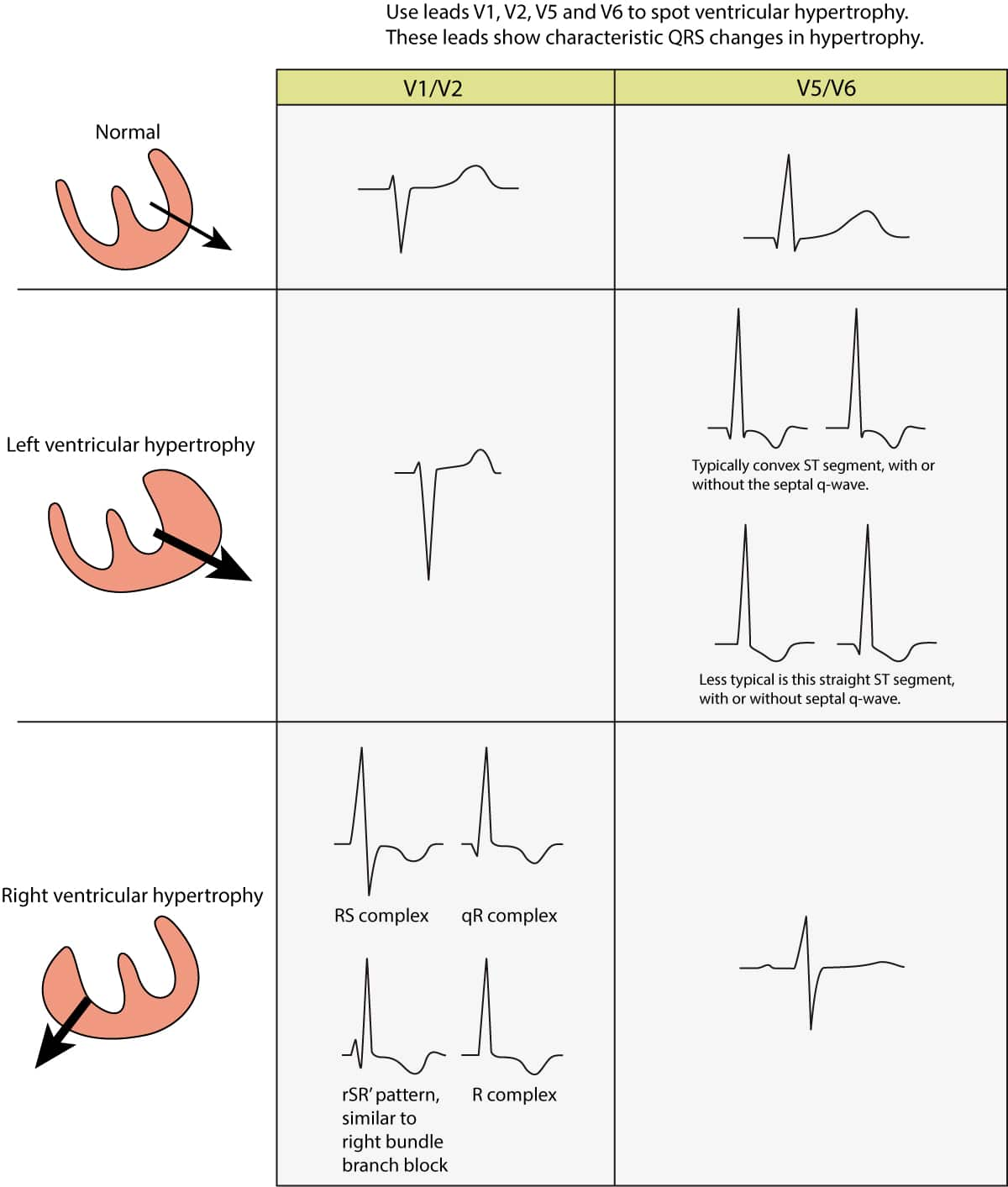Figure 1. ECG changes seen in left ventricular hypertrophy (LVH) and right ventricular hypertrophy (RVH). The electrical vector of the left ventricle is enhanced in LVH, which results in large R-waves in left sided leads (V5, V6, aVL and I) and deep S-waves in right sided chest leads (V1, V2). Right ventricular hypertrophy causes large R-waves in right sided chest leads and deeper S-waves in left sided leads.