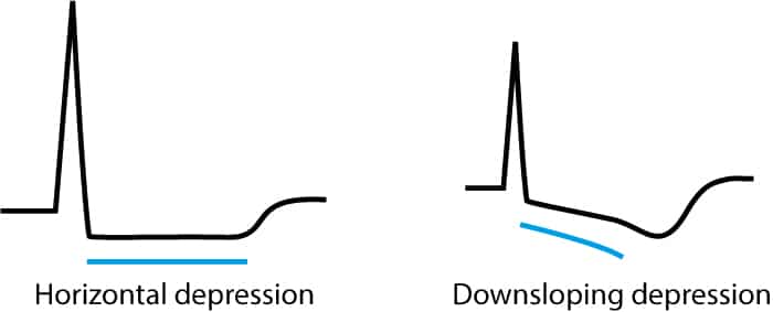 Figure 1. Characteristics of ischemic ST segment depressions on ECG.