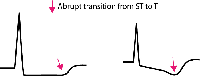 Figure 2. Transition from ST segment to T-wave in ischemia.