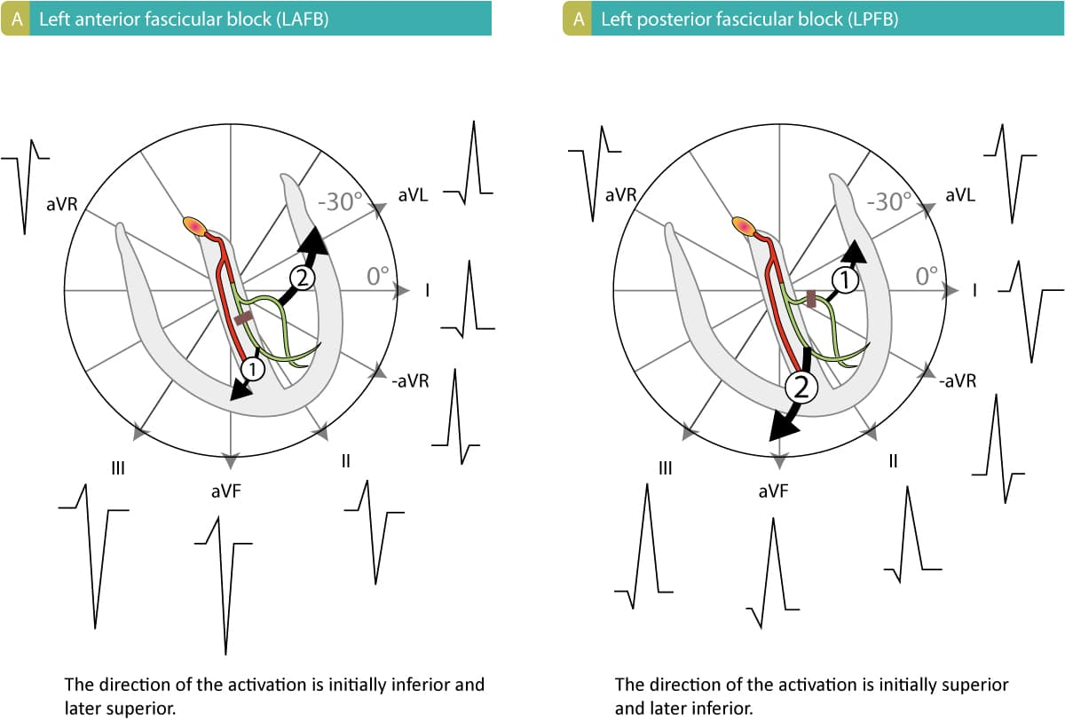 Figure 1. Left anterior fascicular block (hemiblock) and left posterior fascicular block (hemiblock). Inspired by GS Wagner (Marriott's Practical Electrocardiography, Elsevier 2007) and AL Goldberg (Clinical Electrocardiography: A Simplified Approach, Elsevier Mosby 2006).