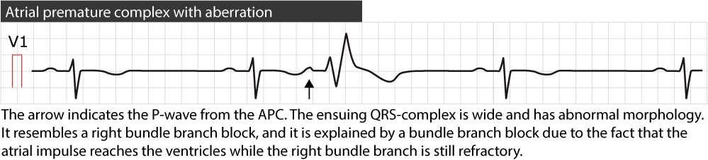 Figure 3. Atrial premature beat conducted with right bundle branch block.