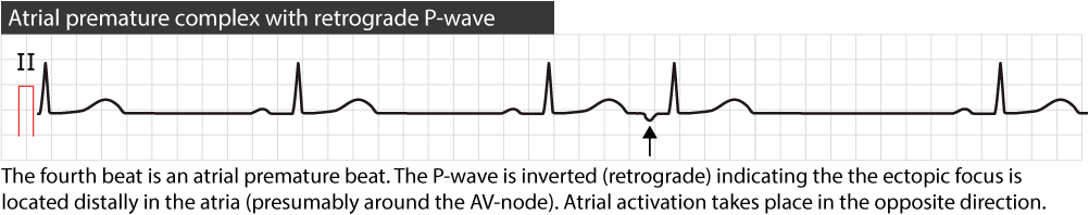 Figure 2. Atrial premature beat with retrograde P-wave.