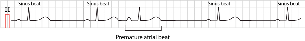 Figure 1. Typical premature atrial contraction (beat / complex).