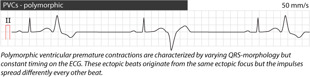 Figure 4. Polymorphic premature ventricular complexes (contractions).