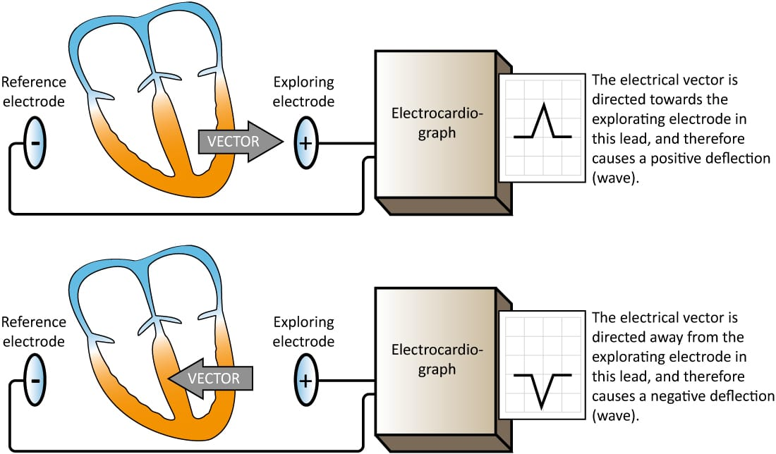 Figure 6. An ECG lead displays an ECG curve (diagram). At least two electrodes are necessary to obtain an ECG lead. One of the electrodes serves as reference and the other serves as exploring electrode. The electrocardiograph compares the electrical potentials detected in the electrodes. If a vectors travels towards the exploring electrode, and away from the reference electrode, a positive wave is printed.