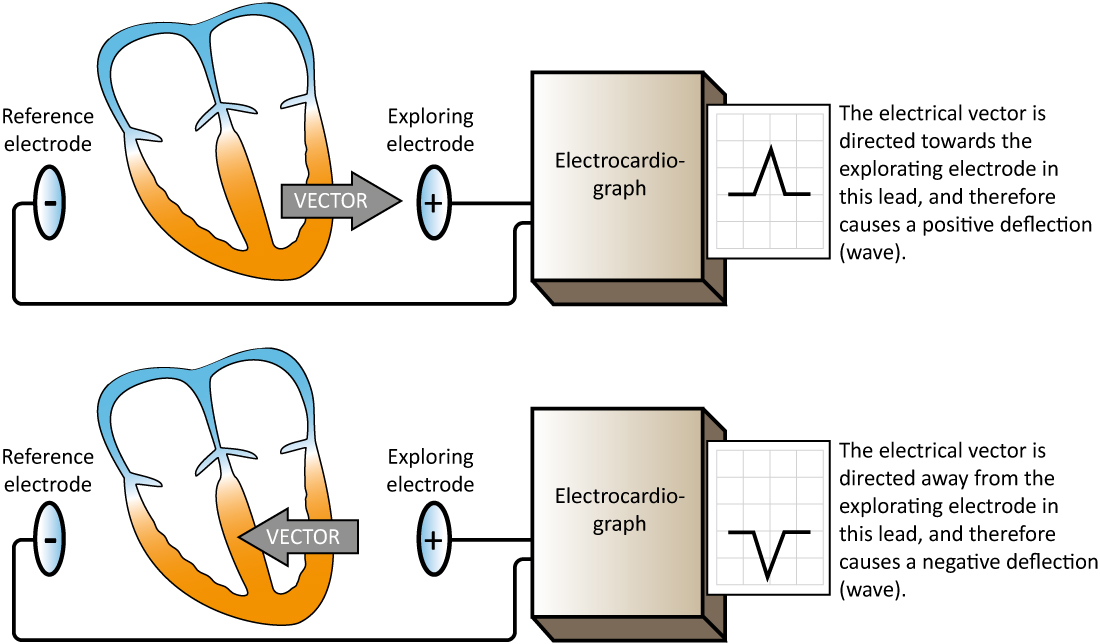 Figure 16. The electrocardiograph generates an ECG lead by comparing the electrical potential difference in two points in space. In the simplest leads these two points are two electrodes (illustrated in this figure). One electrode serves as exploring electrode (positive) and the other as the reference electrode. The electrocardiograph is constructed such that an electrical current traveling towards the exploring electrode yields a positive deflection, and vice versa.