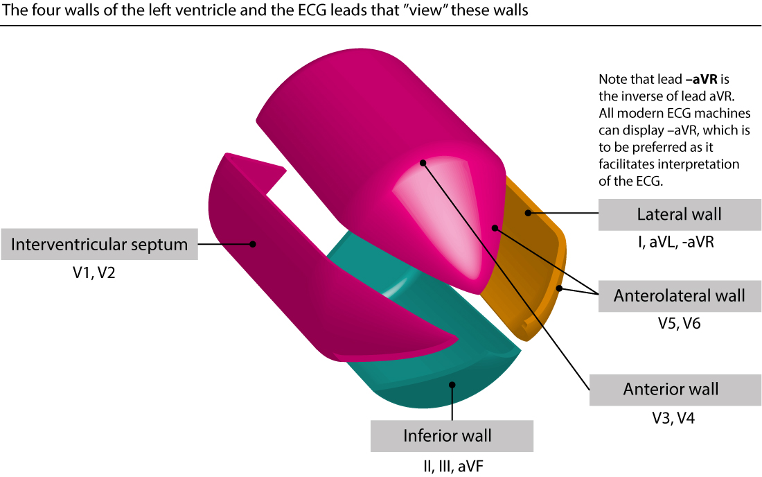 Figure 20. The 12-lead ECG records information on electrical activity of the left ventricle (and not so much of the right ventricle). As seen in the figure above the left ventricle has the shape of a bullet. The left ventricle is traditionally divided into four walls, and the figure above shows which leads that best observe electrical activity of each wall.