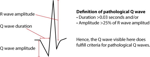Figure 11. Criteria for pathological Q-waves.