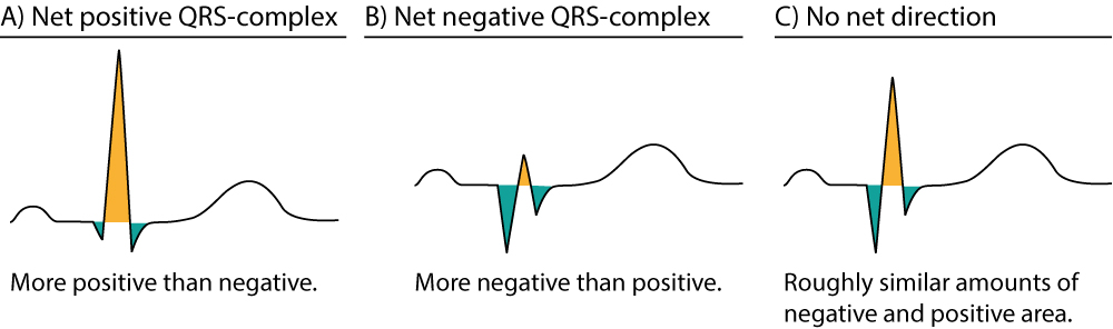 Figure 6. Approximations of the net direction of the QRS-complex. The positive areas are yellow and the negative areas are green.