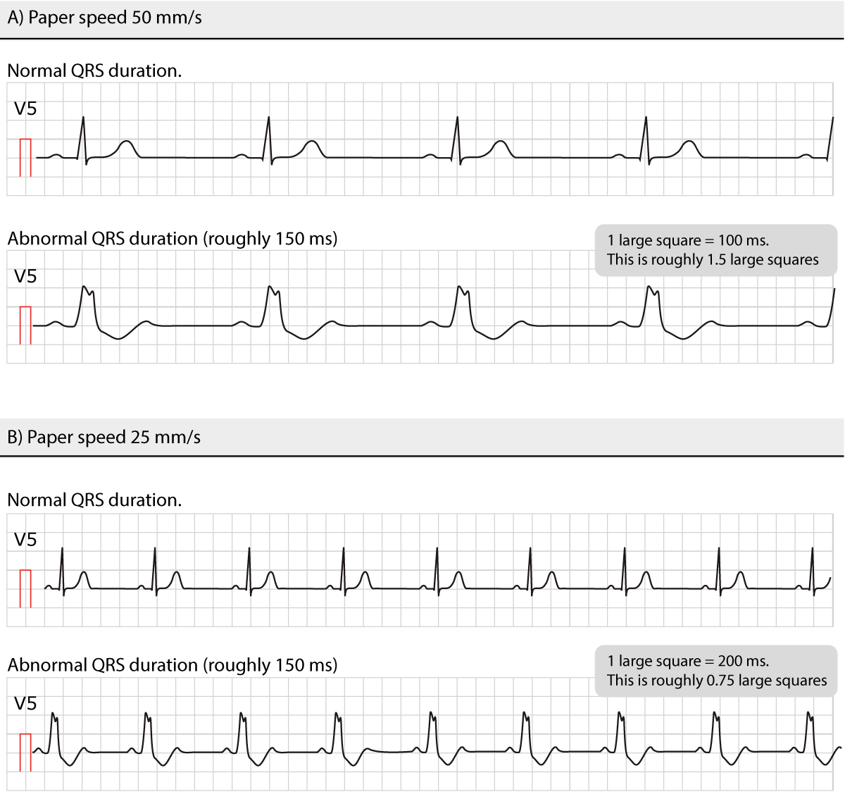 Figure 8. Normal and abnormal QRS durations at different paper speeds.