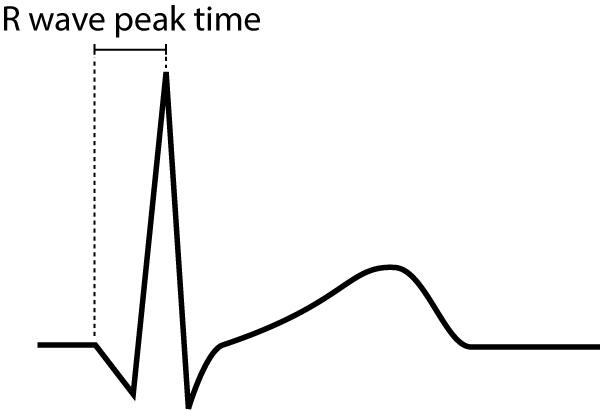 Figure 9. R-wave peak time is defined as the time interval between onset of the QRS complex to the apex of the R-wave.