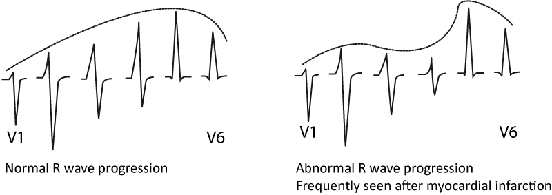 Figure 10. Normal and abnormal R-wave progression.