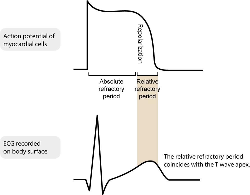 Figure 2. Absolute and relative refractory periods during the action potential.