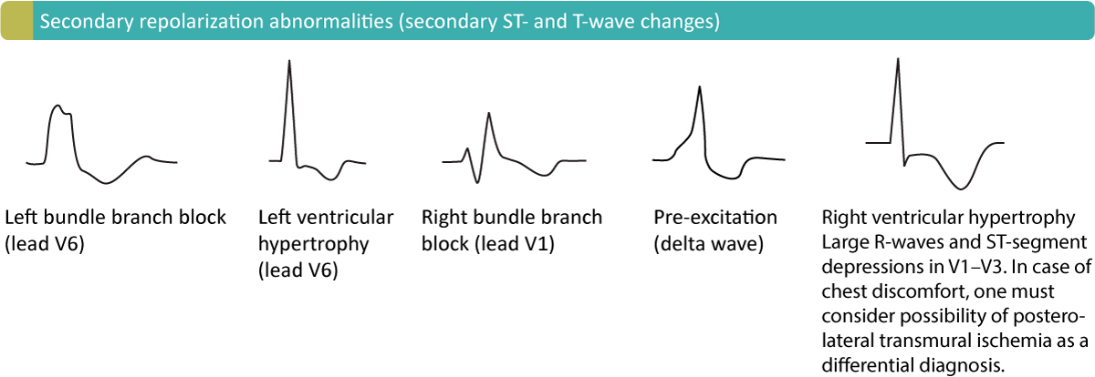 Figure 19. Secondary T-wave inversions.