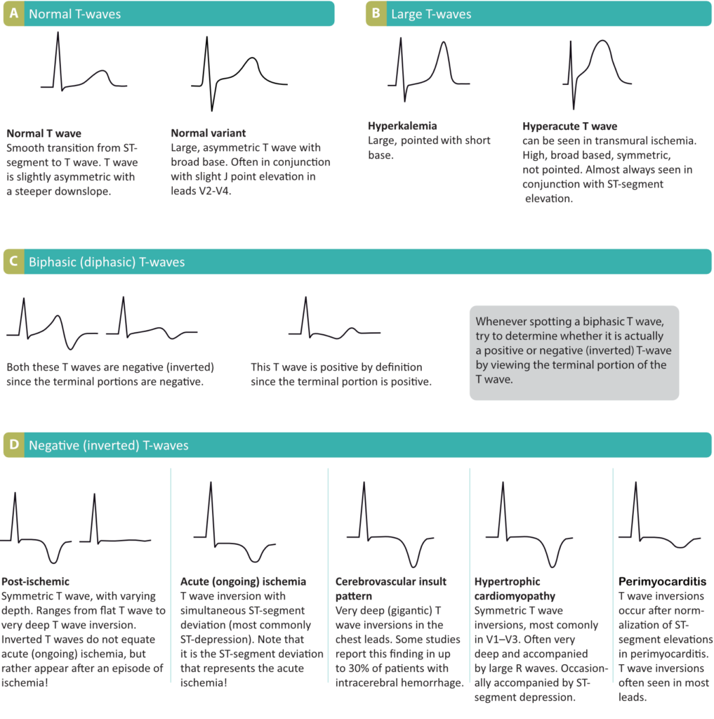 Figure 18. Normal and pathological T-waves.
