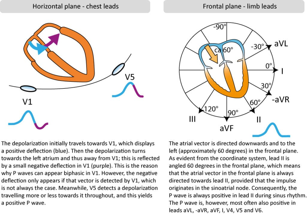 Figure 2. P-wave morphology in chest and limb leads.
