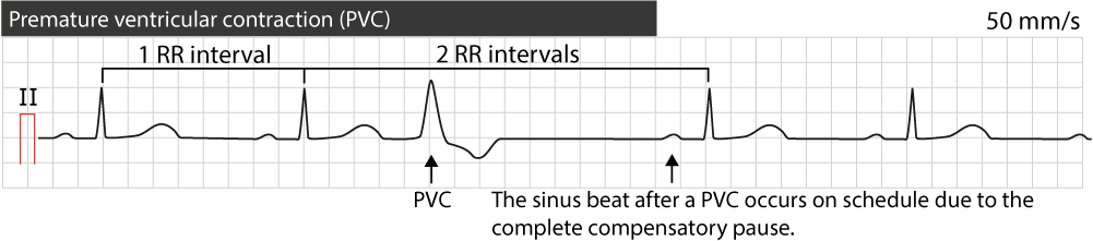 Figure 2. The complete compensatory pause following a premature ventricular contraction.