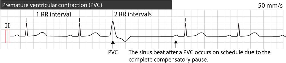 Premature ventricular contractions (premature ventricular complex, premature  ventricular beats) – ECG & ECHO