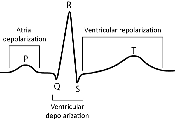 Figure 4. The classical ECG curve and the events reflected on it. The ECG curve above displays a QRS complex consisting of Q-, R- and S-wave. Even if one or two waves would be missing from the QRS complex, it would still be referred to as the QRS complex.