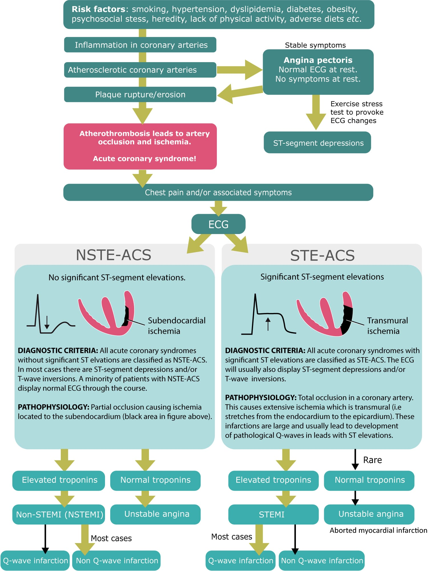 Figure 1. Classification of acute coronary syndromes into STE-ACS (STEMI, ST Elevation Myocardial Infarction) and NSTE-ACS. The latter includes NSTEMI (Non-ST Elevation Myocardial Infarction) and unstable angina.