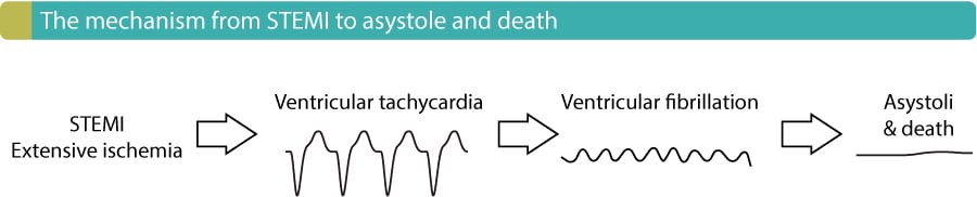 Figure 8. The progression from STEMI to asystole and death.