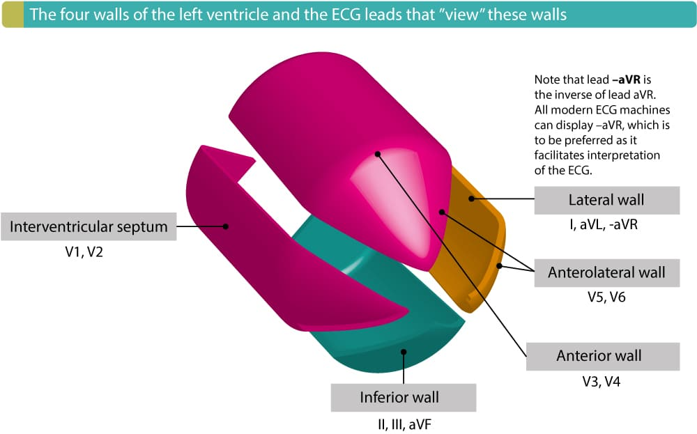 "Figure 4. The four walls of the left ventricle and the ECG leads that reflect these walls. The term ""contiguous leads"" refers to any two leads that are anatomical neighbours. Hence, ST elevation in leads V1 and V2 would fulfill criteria for STEMI. ST elevation in V2 and V3 would also fuflfill criteria for STEMI because these two leads are also anatomical neighbours, even if this illustration shows that V2 reflects the septal wall and V3 the anterior wall."