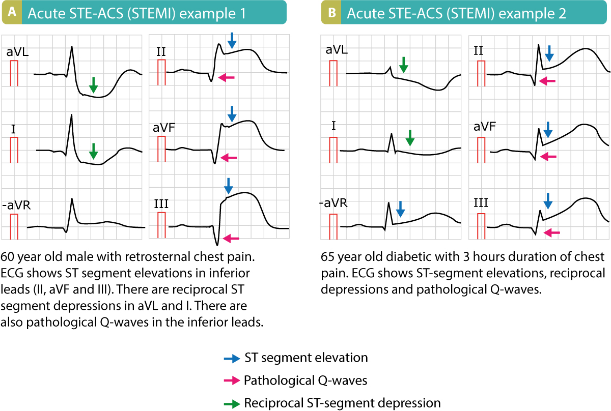 Figure 6. Two examples of STEMI with ST elevations, reciprocal ST depressions and pathological Q-waves.