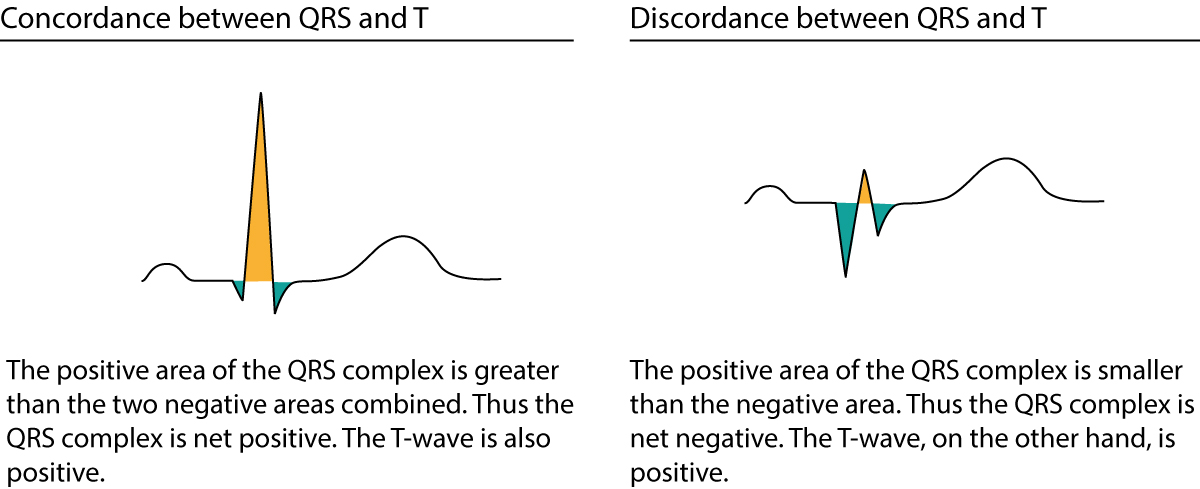 Figure 1. Discordance and concordance between QRS complex and ST-T segment.