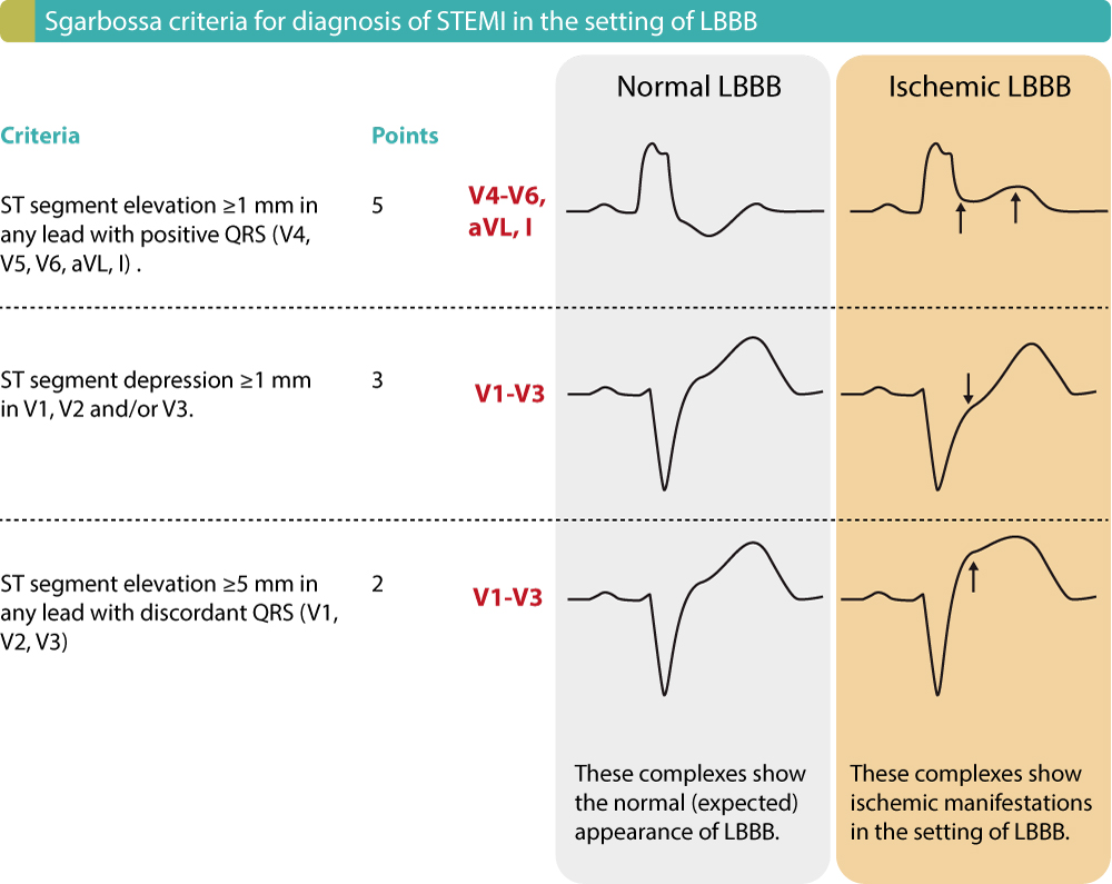 Figure 7. ECG criteria (Sgarbossa criteria) for acute STEMI in the setting of LBBB. Each criteria gives 2 to 5 points. Studies show that a cut-off of ≥3 points yields a sensitivity of 20–36% and specificity of 90–98% for acute STEMI in the setting of LBBB.