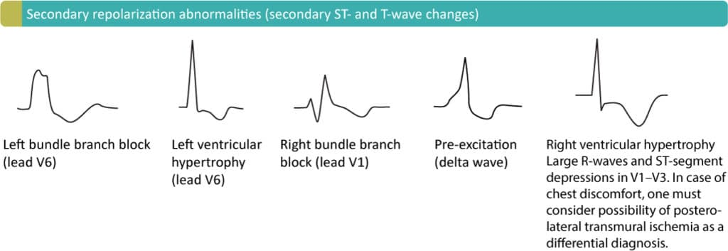 Figure 4. Secondary ST-T changes due to LBBB (left bundle branch block), LVH (left ventricular hypertrophy), RBBB (right bundle branch block), pre-ecitation (WPW syndrome) and RVH (right ventricular hypertrophy).
