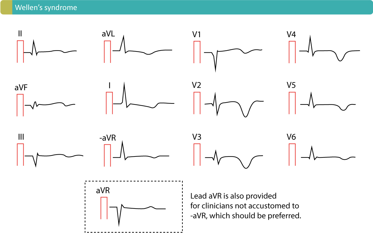 Figure 3. Characteristic T-wave inversions caused by Wellen's syndrome. This ECG pattern is commonly referred to as Wellen's sign.