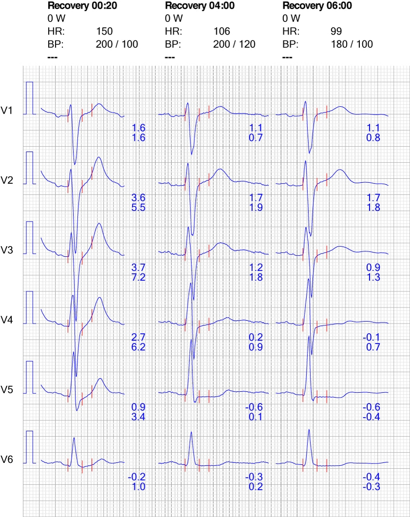 Figure 10. ECG reaction in chest leads during recovery.