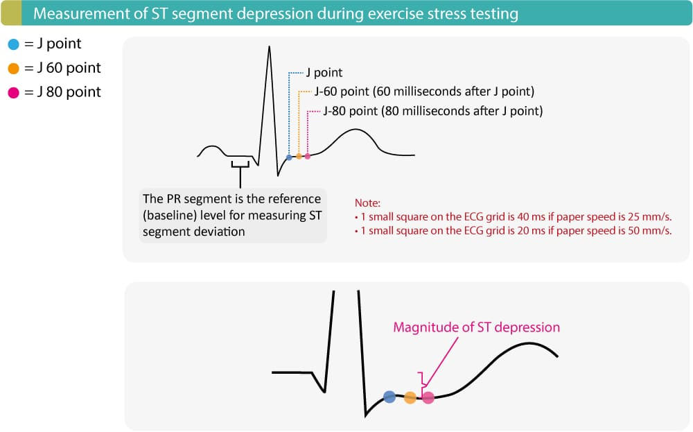 Exercise ECG (stress test, treadmill testing)